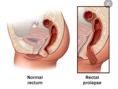 Rectal examination fetish
