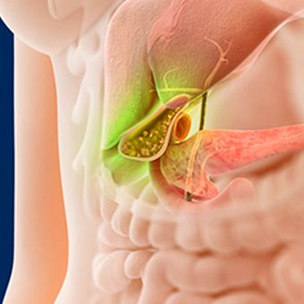 Alt TextThe gallbladder, located beneath the liver, produces bile. #gallbladder