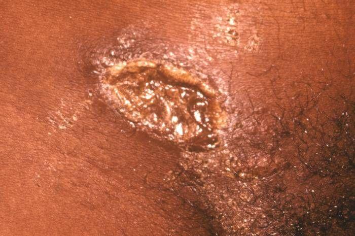 sintomas del chancroide blanco