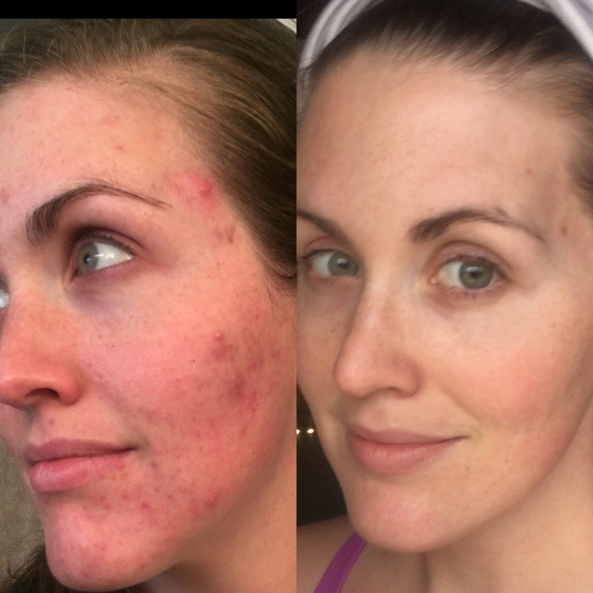 Amazing Before And After Pics From Cystic Acne To Clear Skin With Flying Cow Tallow Wow Flyingcowta Natural Skin Care Facial Steaming The Ordinary Skincare