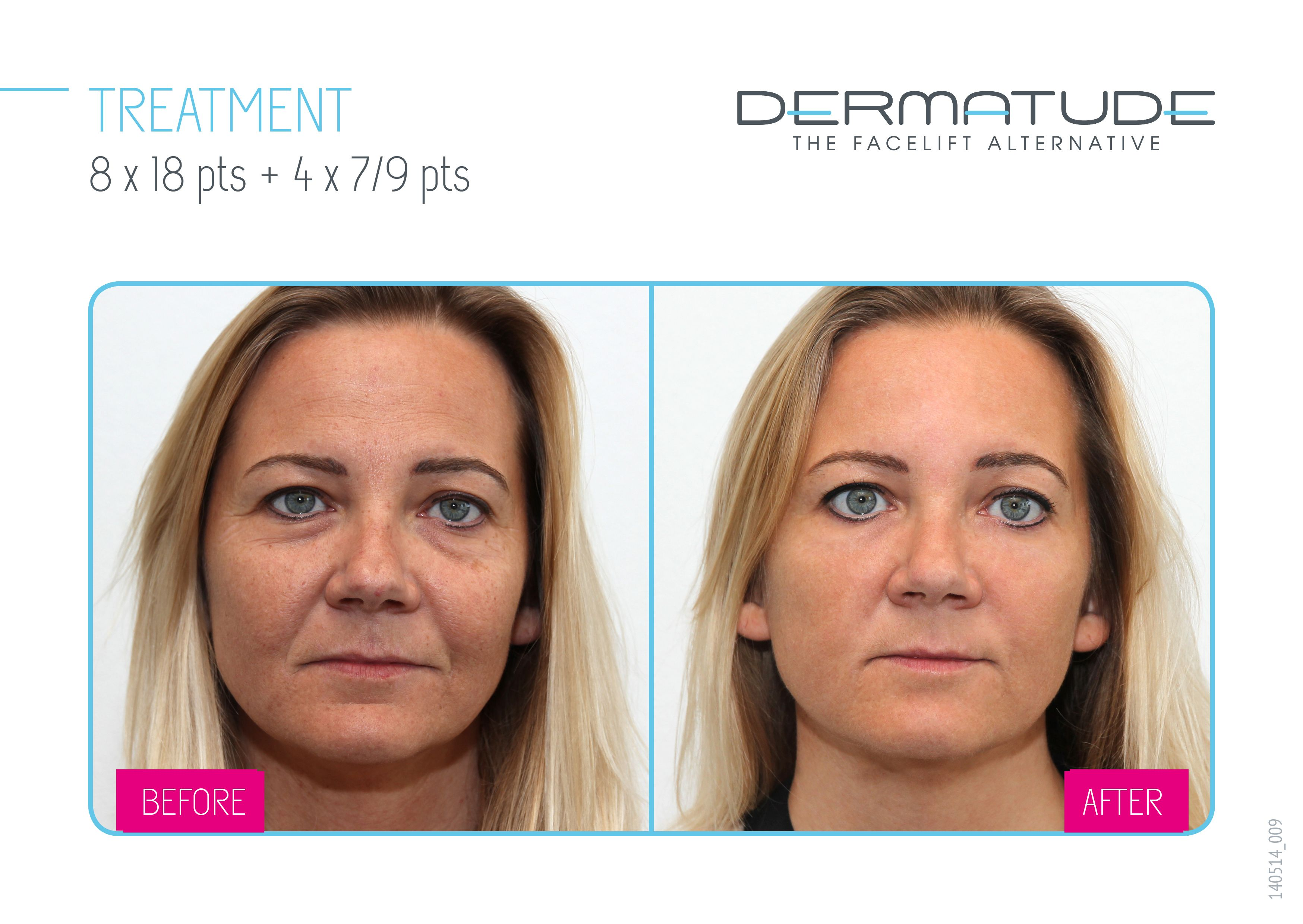 Dermatude Before And After Facial Front Anti Aging Beauty Anti