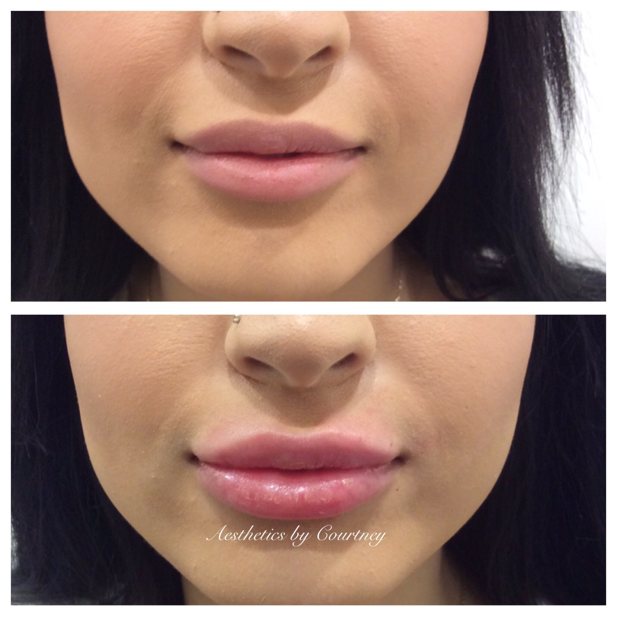 Swelling under nose piercing  LipFillersBeforeAndAfter  Lip Fillers Before And After in