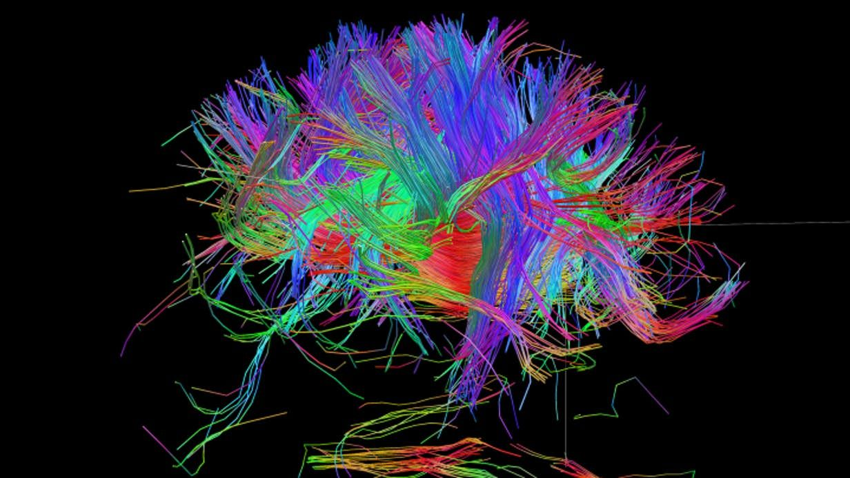 hight resolution of can we build a complete wiring diagram of the human brain