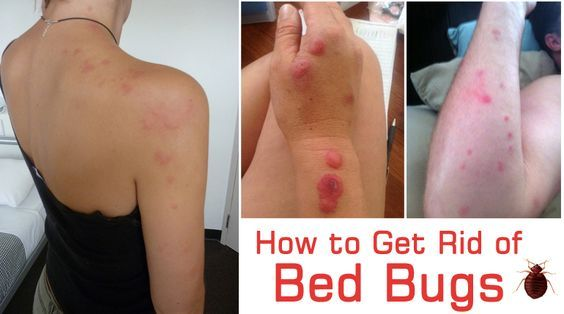 169d166c976aceb647333b5625b47154 - How To Get Rid Of Chiggers In Your Bed