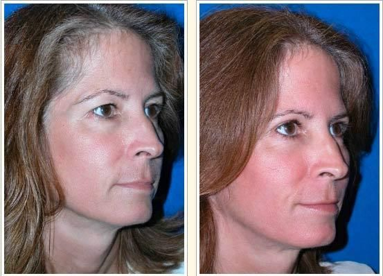 Which celebrities have had cosmetic surgery? - Mirror Online  Celebrity Lower Blepharoplasty