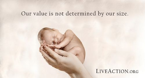 abortion quotes pro life