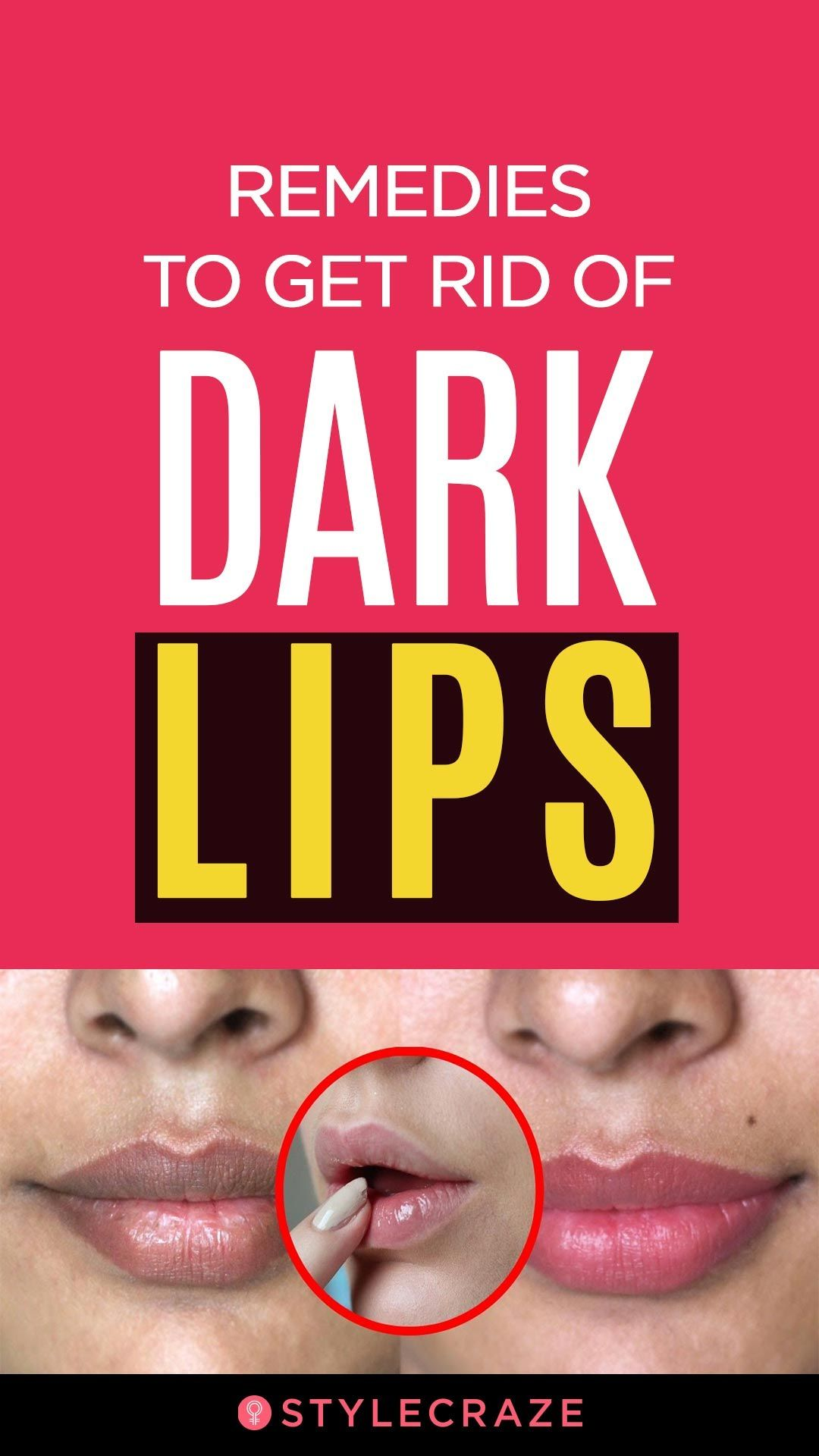 9 Remedies To Get Rid Of Dark Lips  Dark lips, Lips, Natural hair