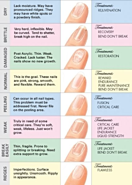 Nail Diseases Chart зурган илэрцүүд