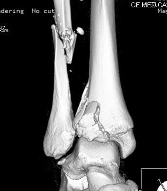 trimalleolar fracture...both medial and lateral malleoli plus the posterior aspect of the tibia