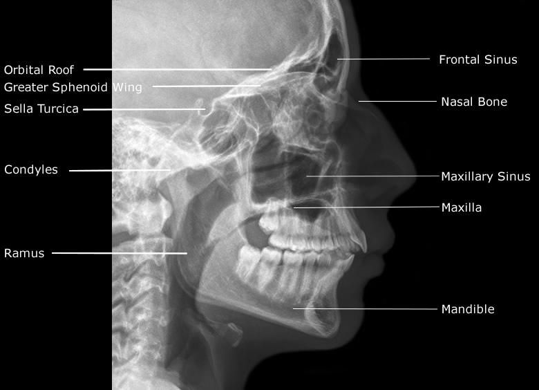 sphenoid bone x ray – citybeauty, Human body