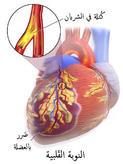 احتشاء عضلة القلب تعريف احتشاء عضلة القلب احتشاء عضلة القلب او مايعرف في الجلطة القلبية هي حالة مرضية ناتجة عن إنقطاع الدم بش Blog Posts Health Blog