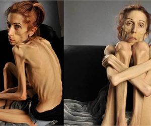 Extreme anorexic nude