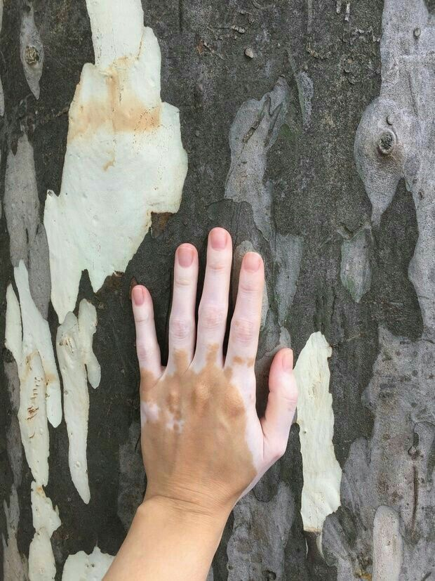 Pin By And Then Light On Bright Jakoby Nicholas Vitiligo Treatment Vitiligo Vitiligo Skin