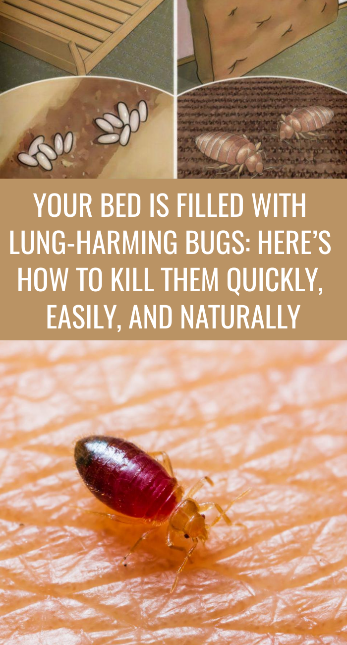 16bc1851a9ee6f8af7624d7aff6593e7 - How To Get Rid Of Ticks In Your Bed