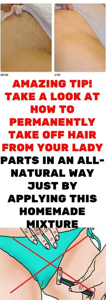 Nowadays, Both Men And Women Remove Hair From Their -8395