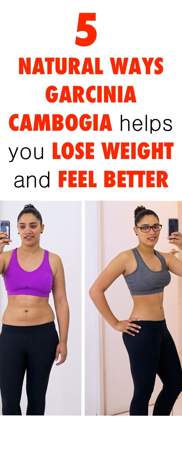 St francis weight loss surgery greenville sc
