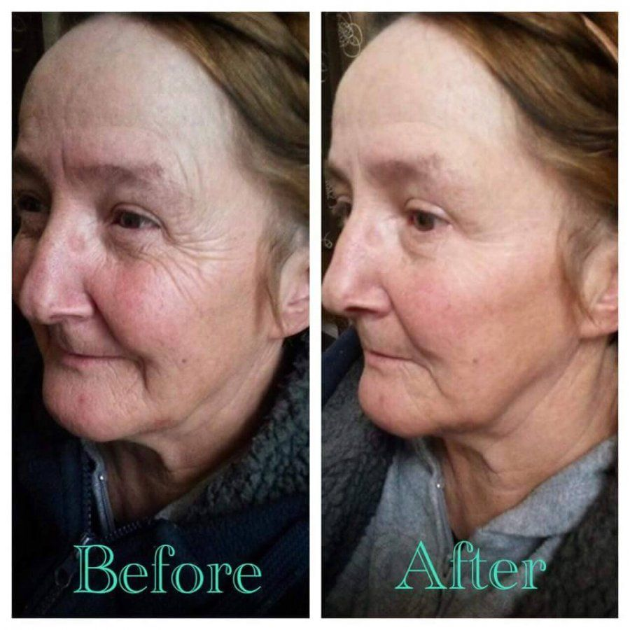 Instantly Ageless Before And After Of The World S Best 90 Second