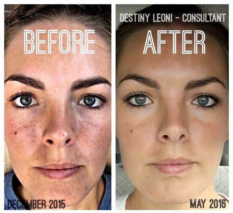Seriously guys...CHECK OUT her skin!!!!! Amazing results using Reverse by Rodan + Fields! Do you have sun damage? Discoloration? Brown spots? This regimen worked for me and I will sing it's praises all day long!! Message me for more information!
