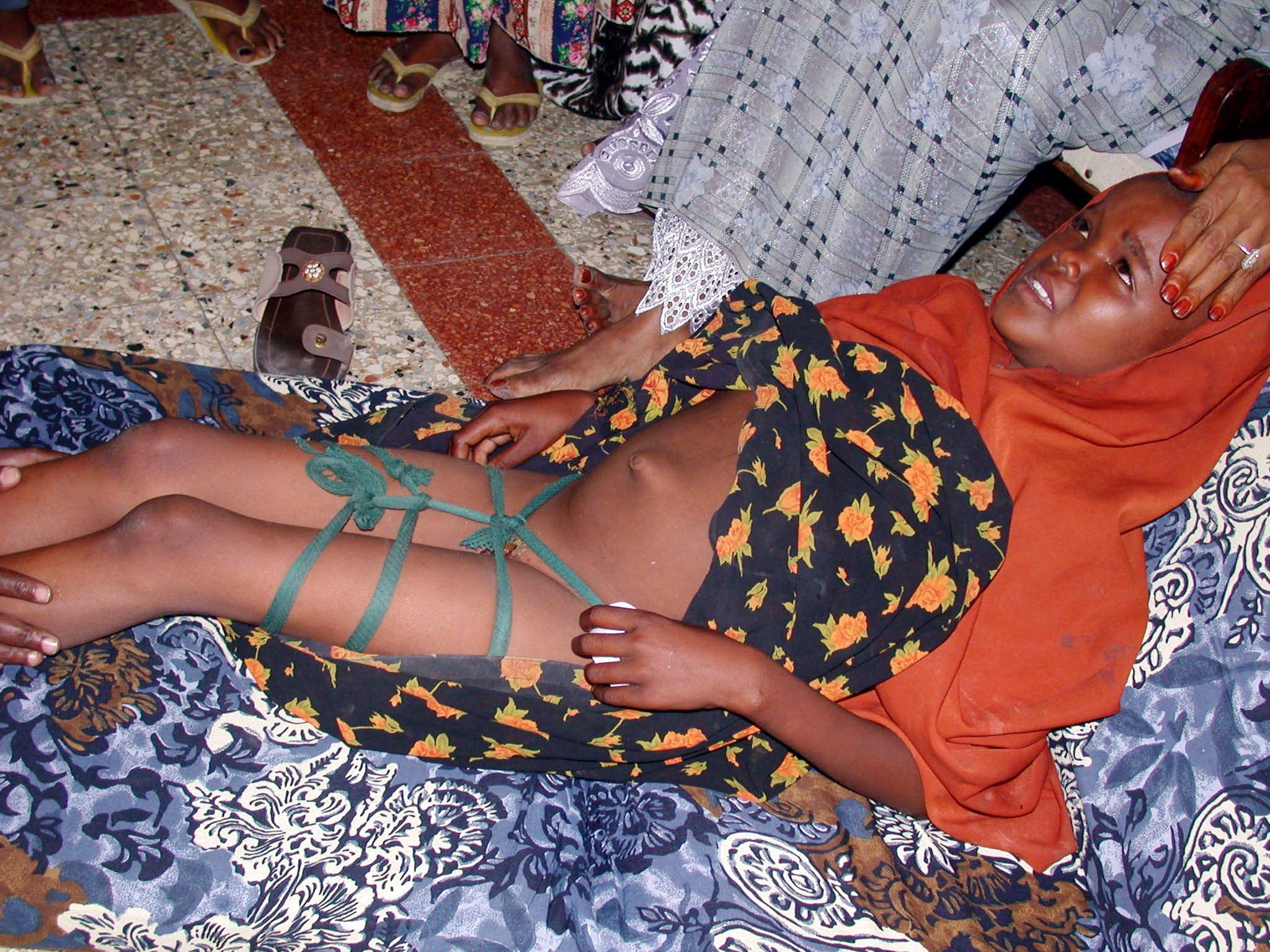pix for > healed female circumcision female circumcism pix for > healed female circumcision
