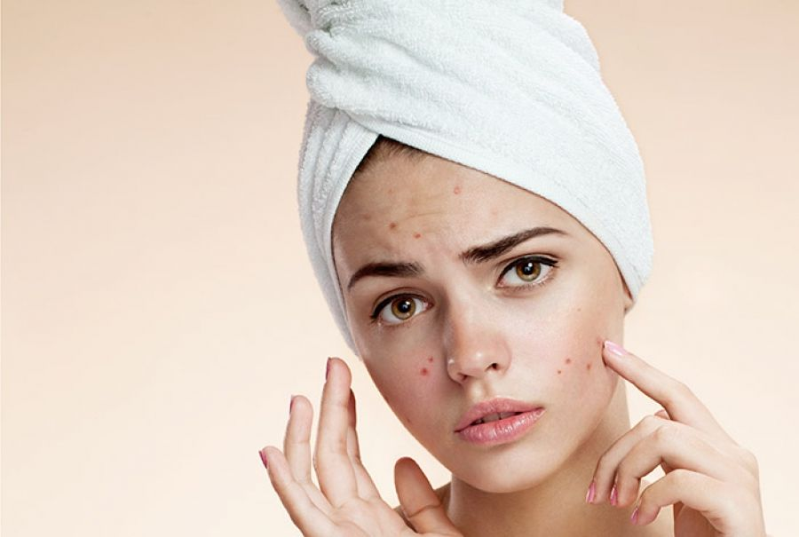 Best Cleansers For Oily Skin And Acne What To Look For Oily Skin Acne Acne Treatment Best Acne Cleanser