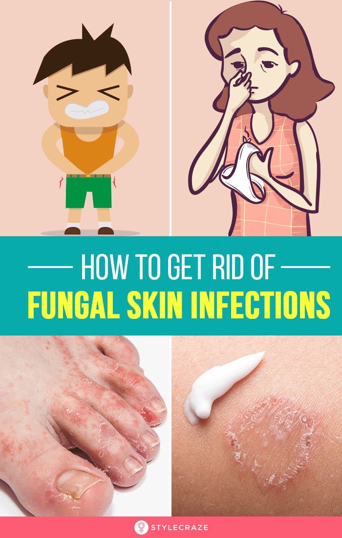 How To Get Rid Of Skin Fungus At Home