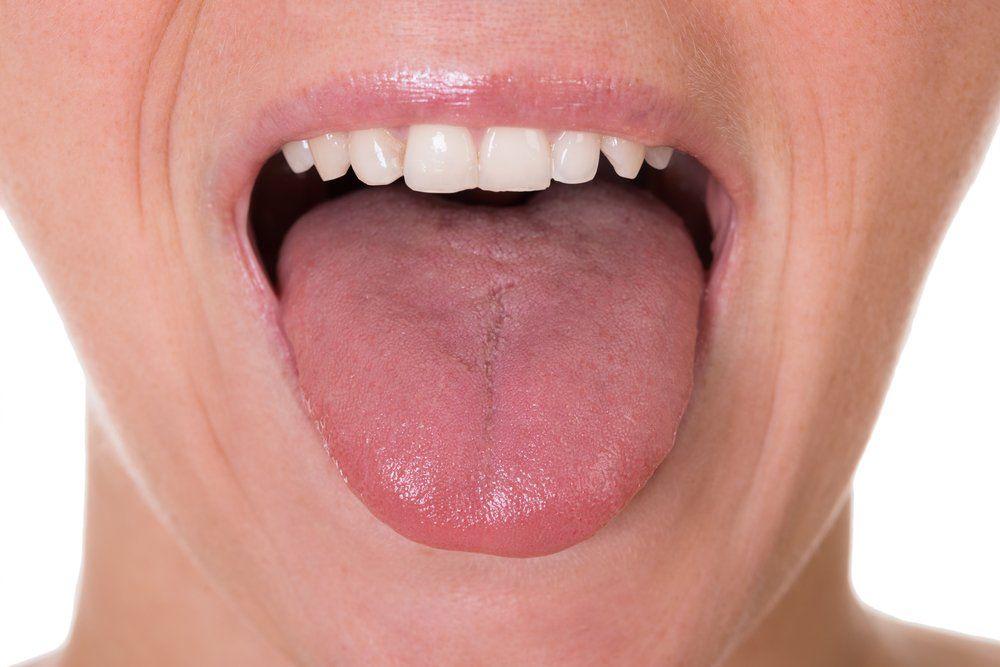 cancer langue