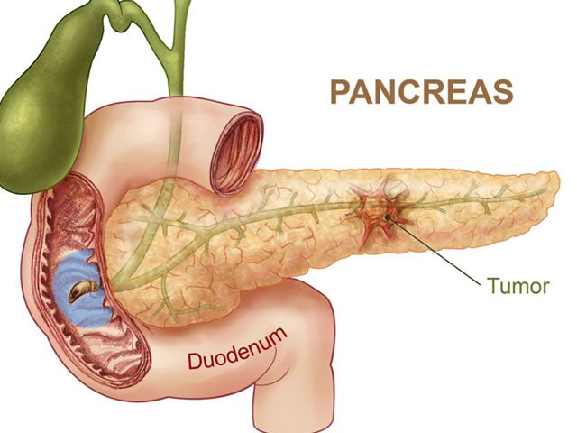 All about Pancreatic Cancer - http://www.familyherbalhealth.com/?p=2145