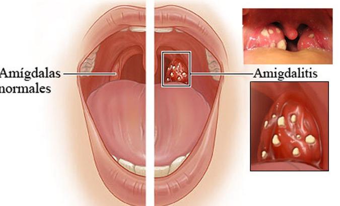 La Mejor Forma De Eliminar La Amigdalitis Y El Dolor De Garganta En Tan Solo 2 Horas Natural Medicine Sore Throat Healing Food