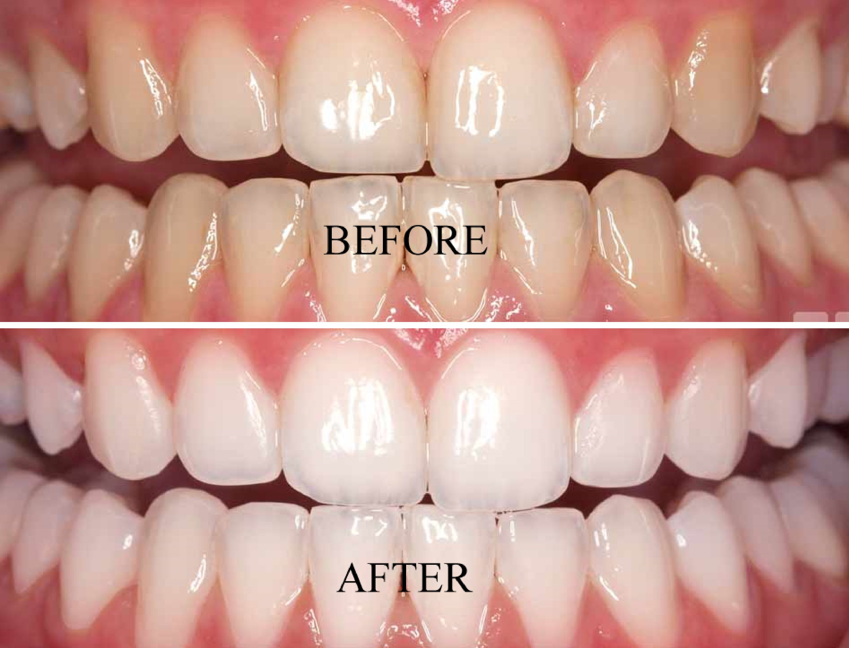 Full mouth scaling polishing ak dental with images
