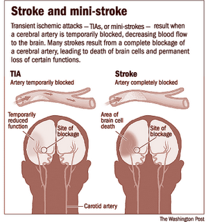 help with speech therapy after a stroke Help after stroke stronger after stroke enablemeorgau to find a speech pathologist download the communication after stroke fact sheet.
