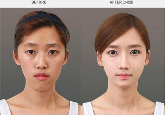 Korean Plastic Surgery Before And After Jaw Surgery And Chin Reduction Korean Plastic Surgery Extreme Plastic Surgery Nose Surgery