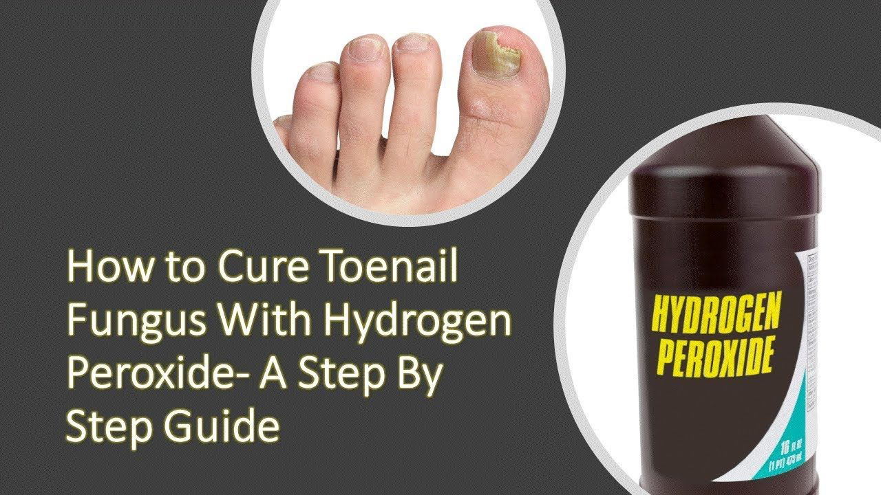 Are you suffering the pain of toenail fungus? In this video you will ...