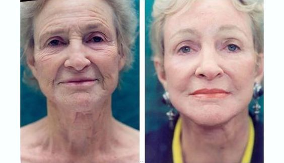 You Wont Believe What This Woman Did To Look 20 Years Younger Without Surgery