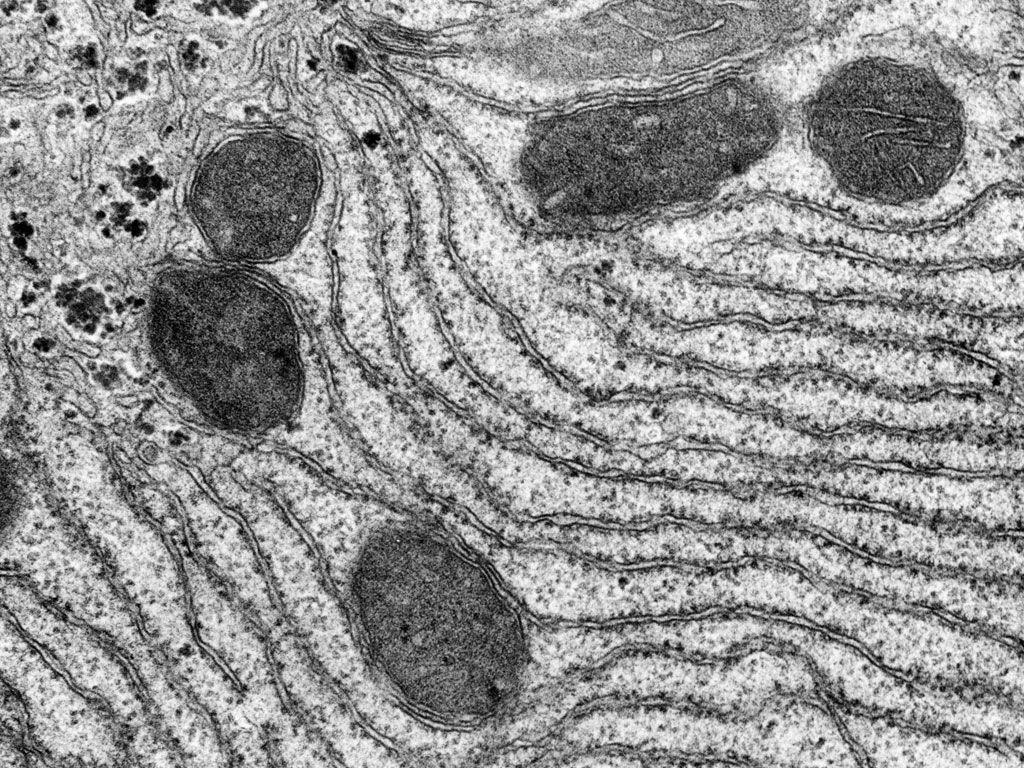 Rough endoplasmic reticulum - Yale Histology Gallery ...