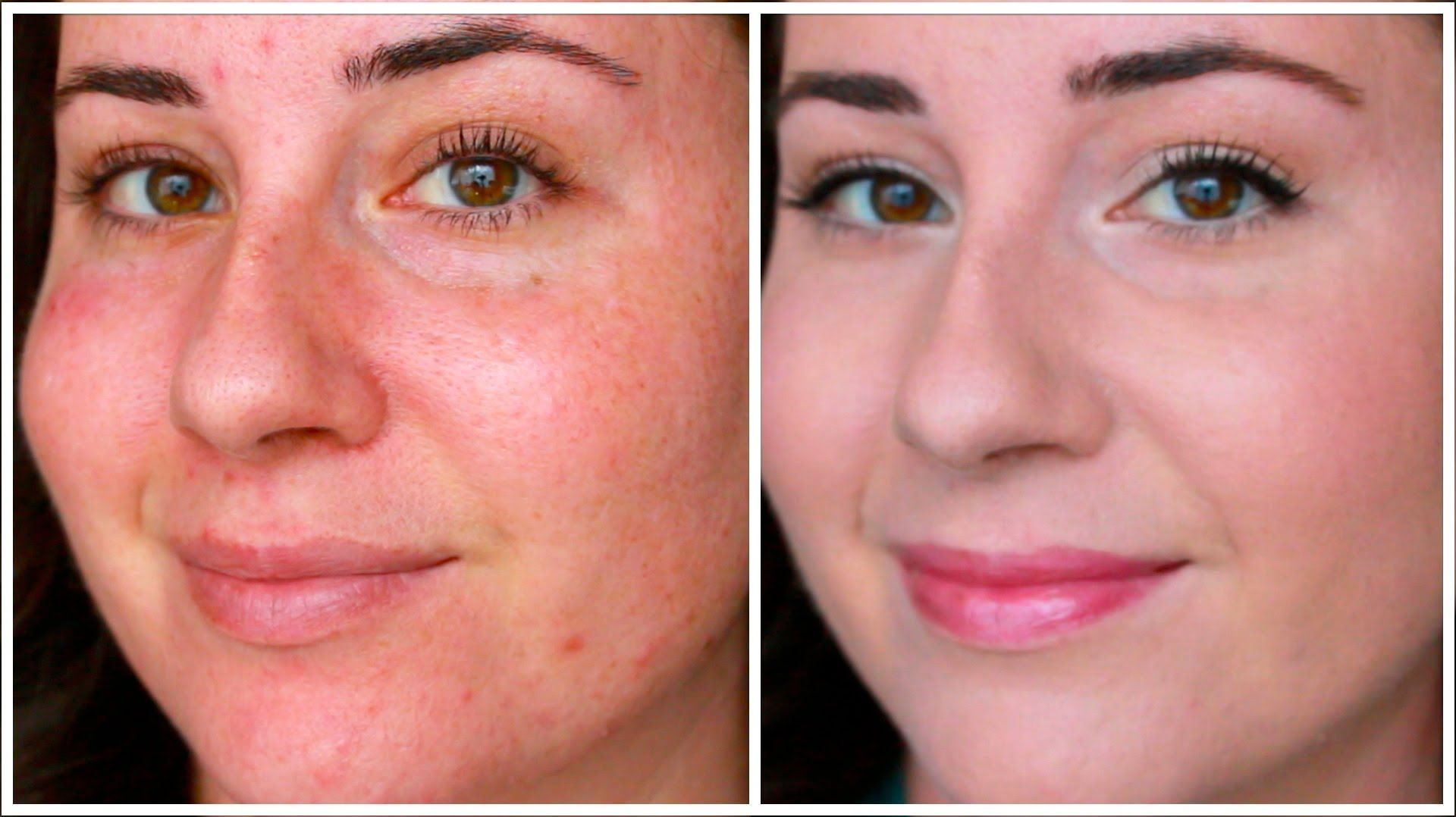 How To Cover Redness Rosacea skin care, Natural