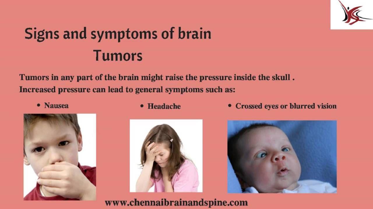Pediatric Brain Tumor Treatment In Chennai : Pediatric ...