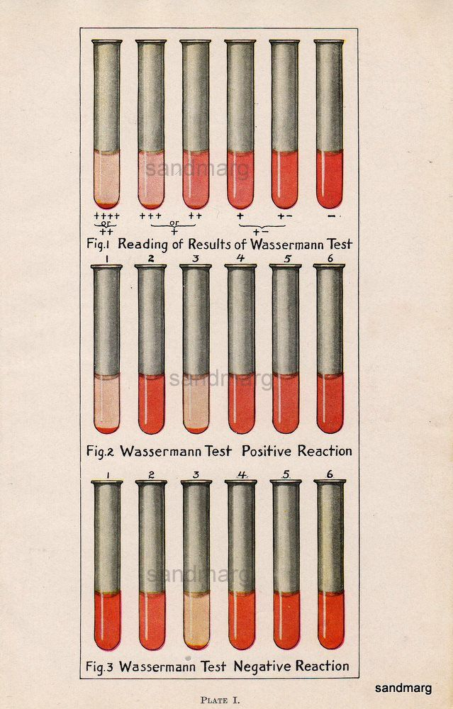 Wasserman Test For Syphilis Medical Pinterest Posts - Syphilis map us circa 1700s