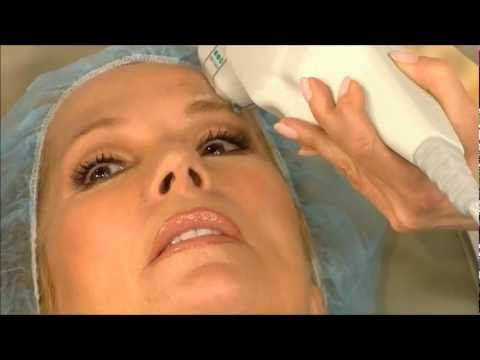 Yes That S Kathie Lee Gifford On The Today Show Experiencing Ultherapy Remedy Skin Body Ultherapy Skin Care Treatments Excellent Skin Care