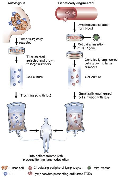 Figure of adoptive cell transfer immunotherapy using autologous tumor-infiltrating T lymphocytes ext