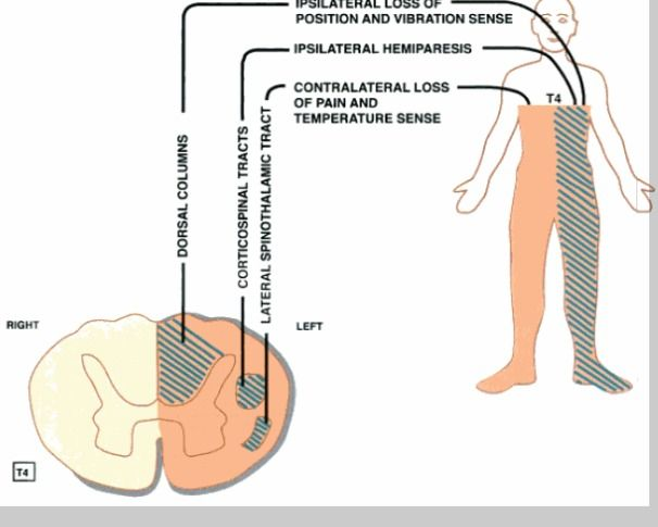 Anatomic Basis Of Neurologic Diagnosis Pediatric Occupational Therapy Occupational Therapy Ot Therapy