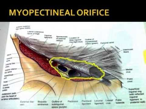 Pin by slideworld.org on Anatomy of Inguinal Canal   Pinterest ...