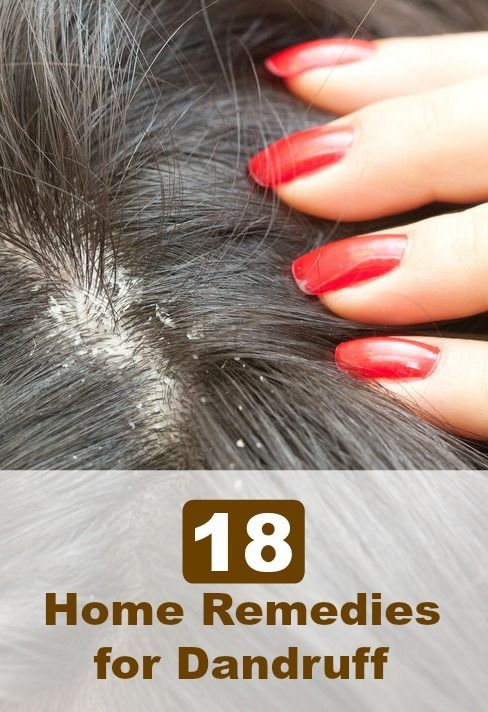 how to get rid of dry scalp home remedies
