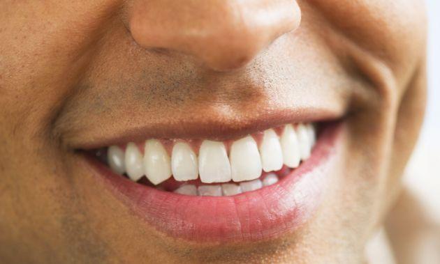 Sourire Dent Homme Recherche Google Belles Photos Dental