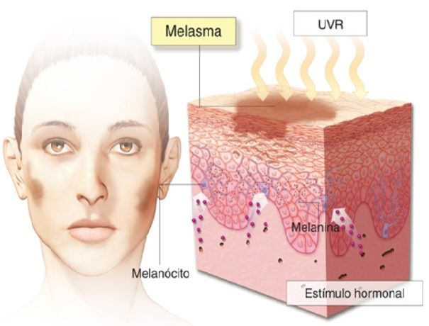 Firstly, lets understand what is Melasma. It is commonly known as a dark patch caused by skin discoloration shown in women during their pregnancy. While it is also possible in menhowever it is very rare. It is also perceived that this is also caused due to exterior sun exposure, exterior hormonal imbalance controls like birth