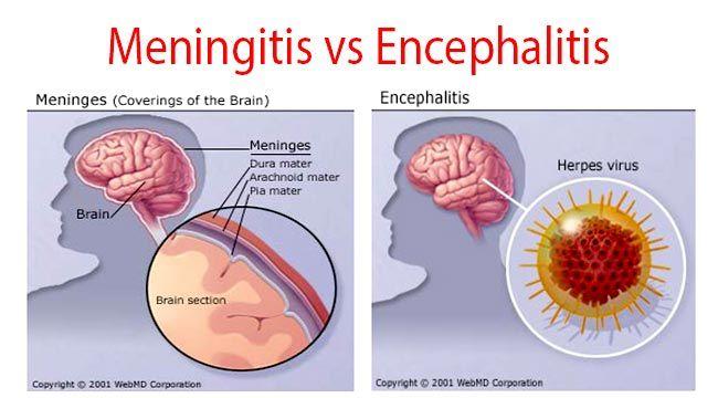 "Картинки по запросу ""encephalitis vs meningitis"""""