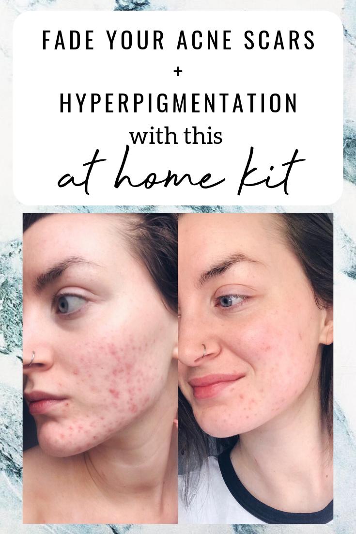 1725042fbace45f067fe9e9c750f5331 - How To Get Rid Of Acne Scars And Hyperpigmentation Naturally