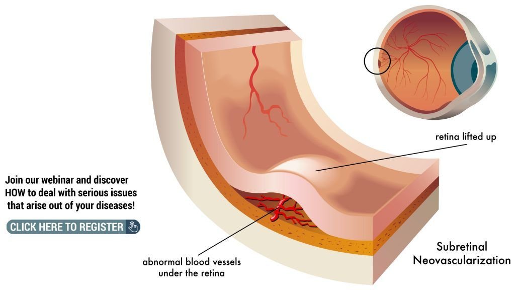 What Process Causes Wet Macular Degeneration Blood Vessels