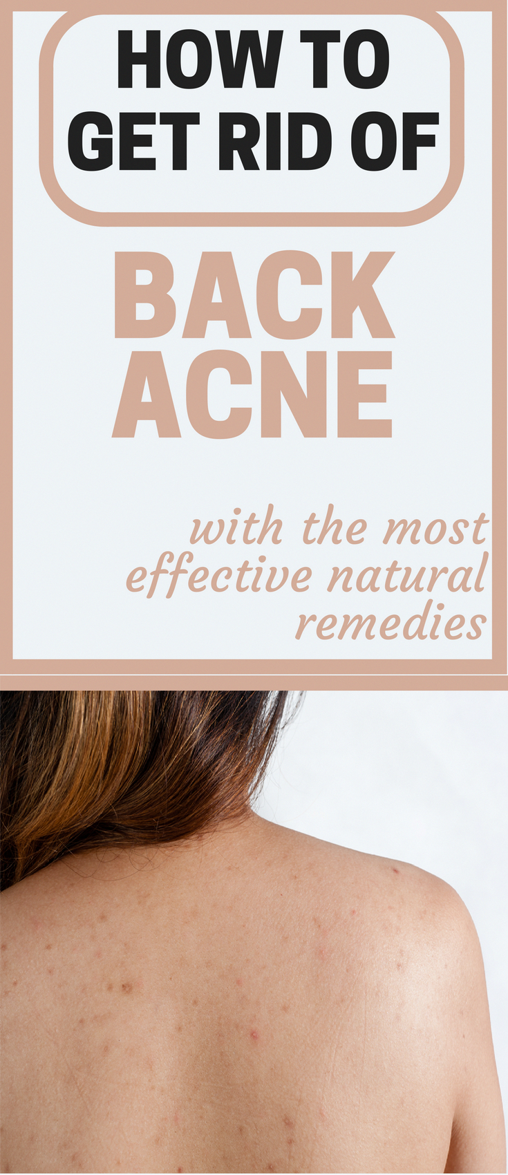 How to get rid of back acne with the most effective natural remedies