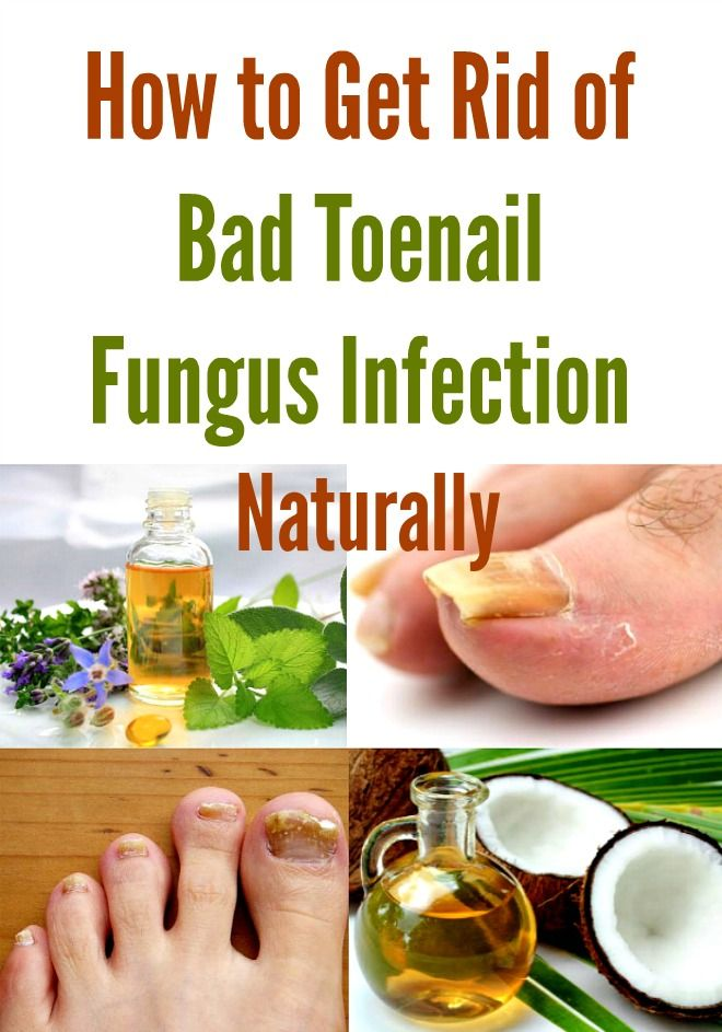 How to Get Rid of Bad Toenail Fungus Infection Naturally | Health ...