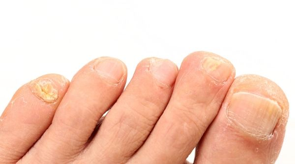 What Caused Your Brittle Toenails | From the Blog | Brittle toenails ...